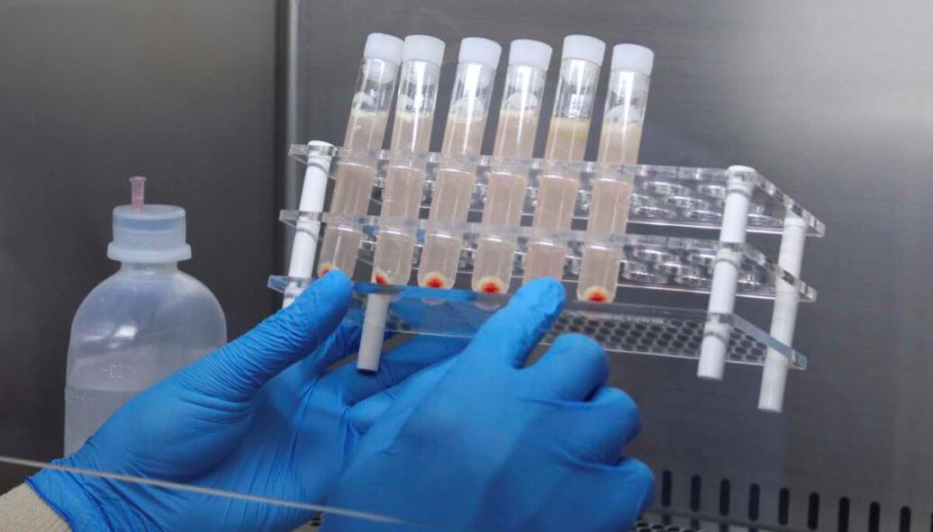 terapija matičnim ćelijama